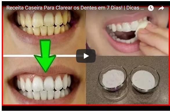Receita Caseira Para Clarear Os Dentes Em 7 Dias Dicas De Saude